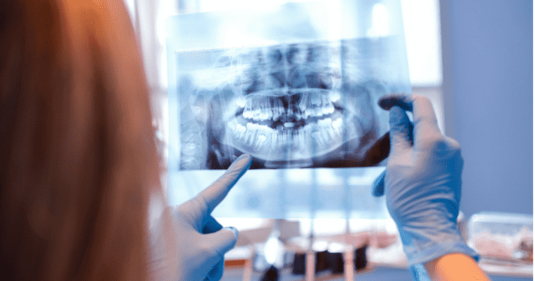Many wonder are dental x-rays safe?